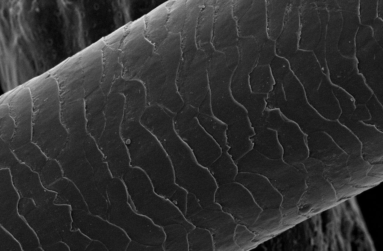 Pelo humano al microscopio electrónico donde se aprecian las capas de queratina